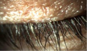 עין יבשה: העפעפיים במצב של יובש בעין