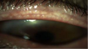 מייבומיטיס: דלקת של בלוטת המייבומיאן - סיבות ליובש בעין.