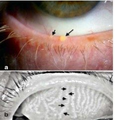 יובש בעין: תקריב של בלוטות מיבומיאן